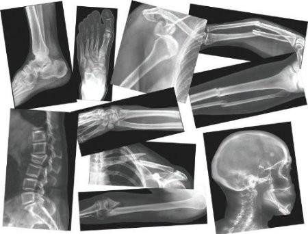 Röntgenbilder von Knochenbrüchen